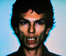 dents de ramirez
