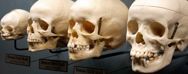 Crâne de foetus, d'enfant, de femme et d'homme