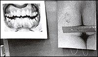 dentsBundy